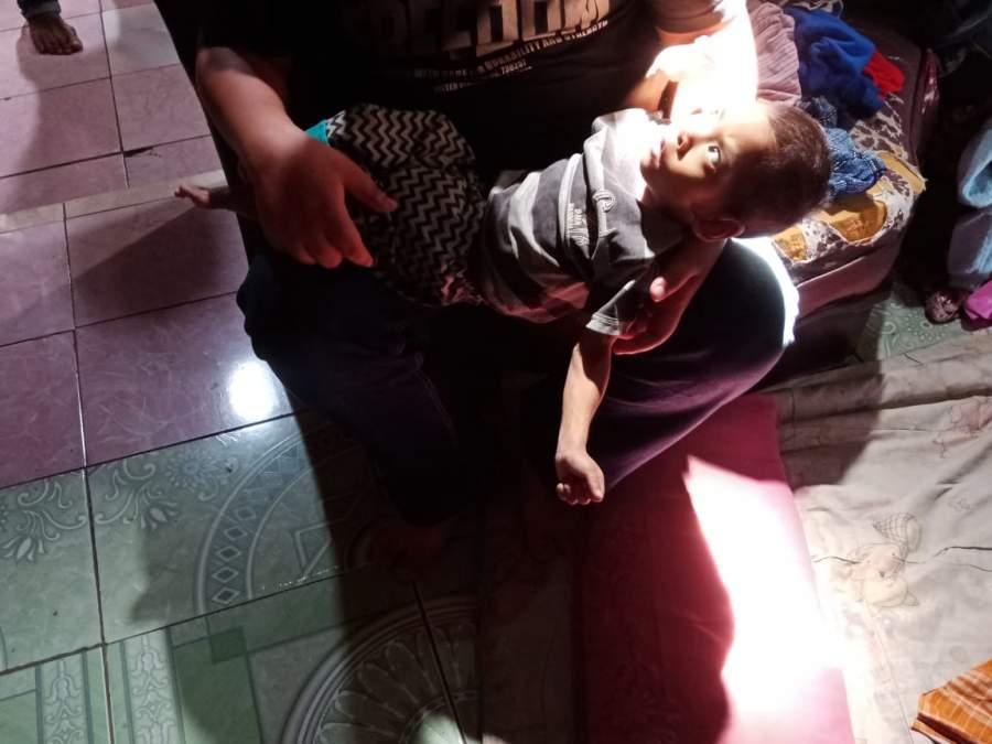 Anak Gizi Buruk di Kota Serang Tinggal di Gubuk Bambu