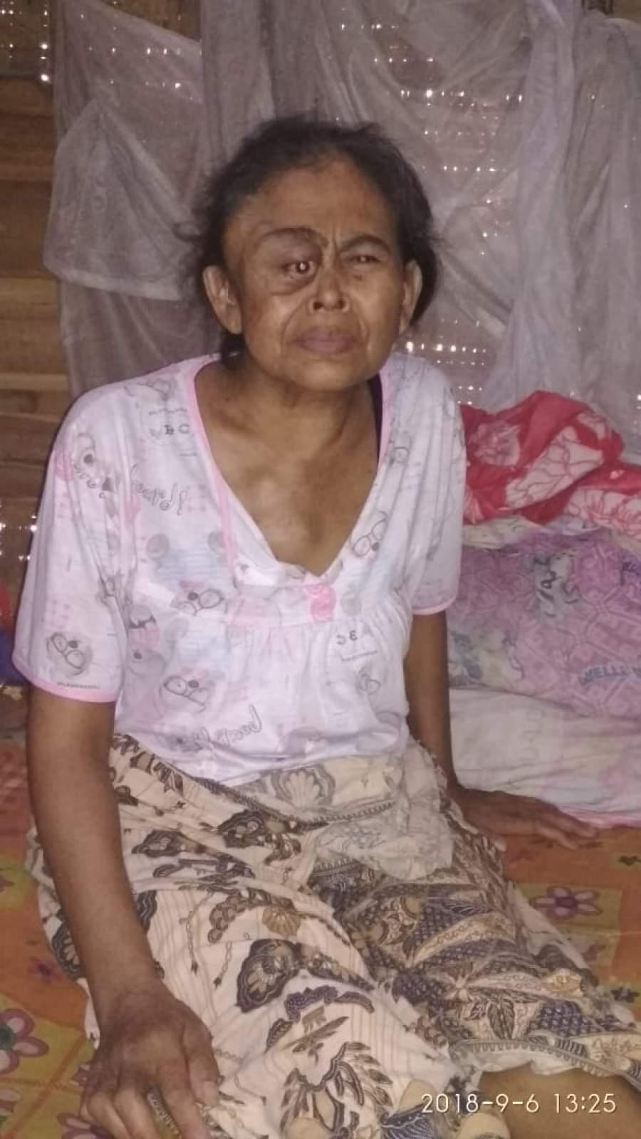 Penderita Kanker di Pandeglang Butuh Bantuan